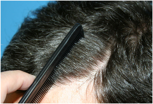 Manual FUE Hair Transplantation
