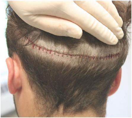 Пересадка волос с ног