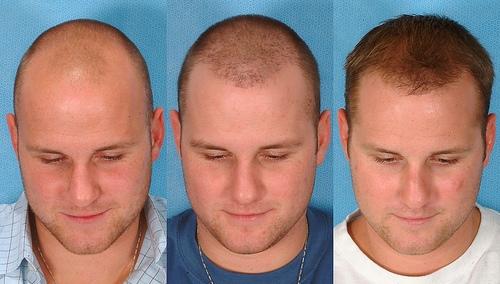 Transplanted Hairs