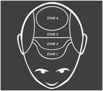 Androgenic Alopecia Affected Zones