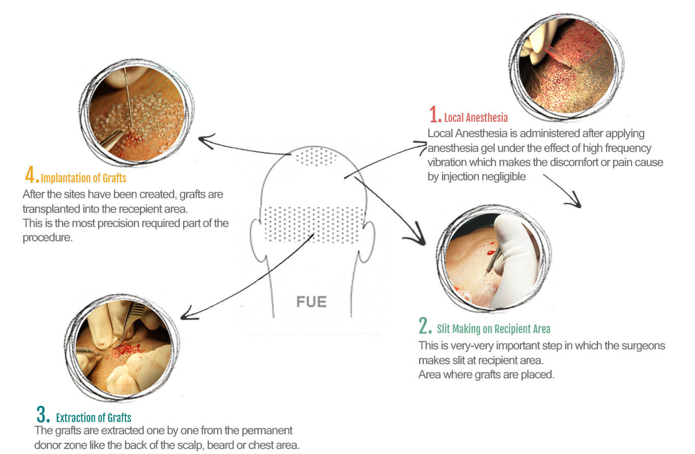 fue-infograph