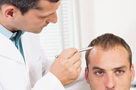 Hair Transplant in Men