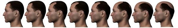 hair transplantation zone