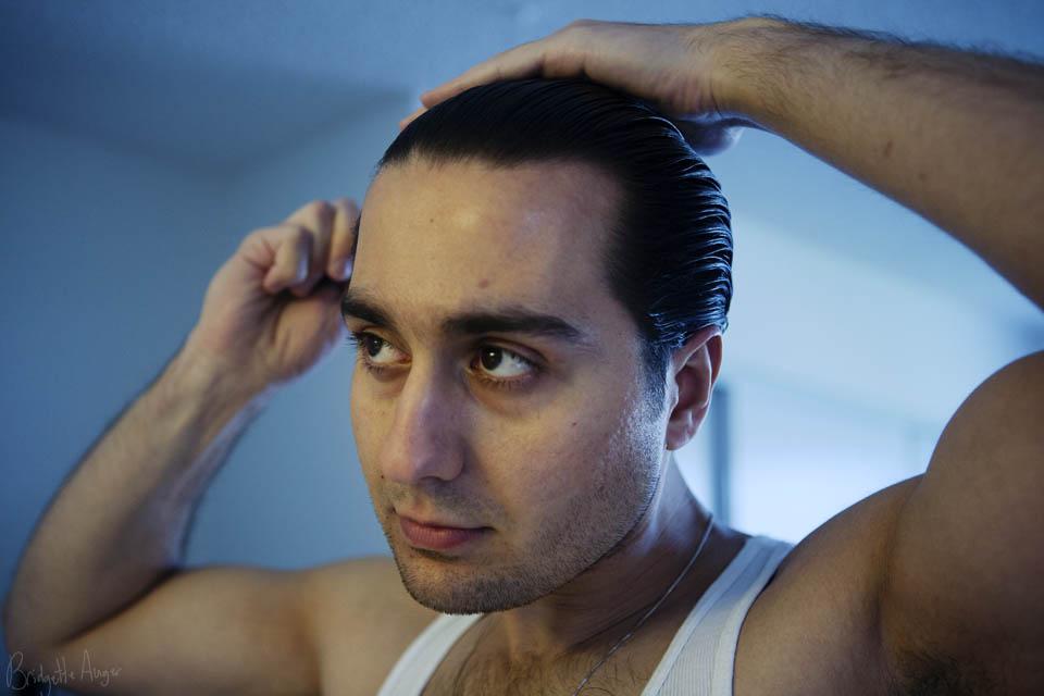 hair transplant 2
