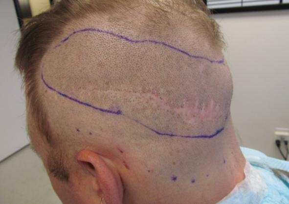 Hair Transplant Scar Removal Hair Transplant Dubai