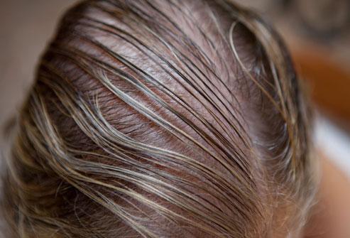 Thinning Hair