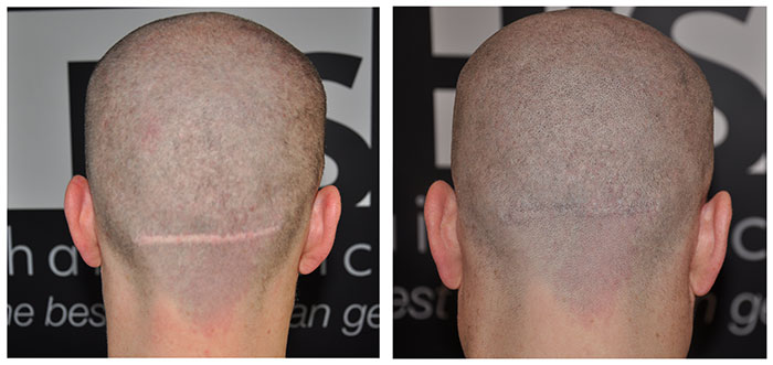 How To Get Rid of Scars after FUE or FUT Hair Transplant ...