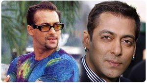 Salman Khan Hair Transplant Before and After