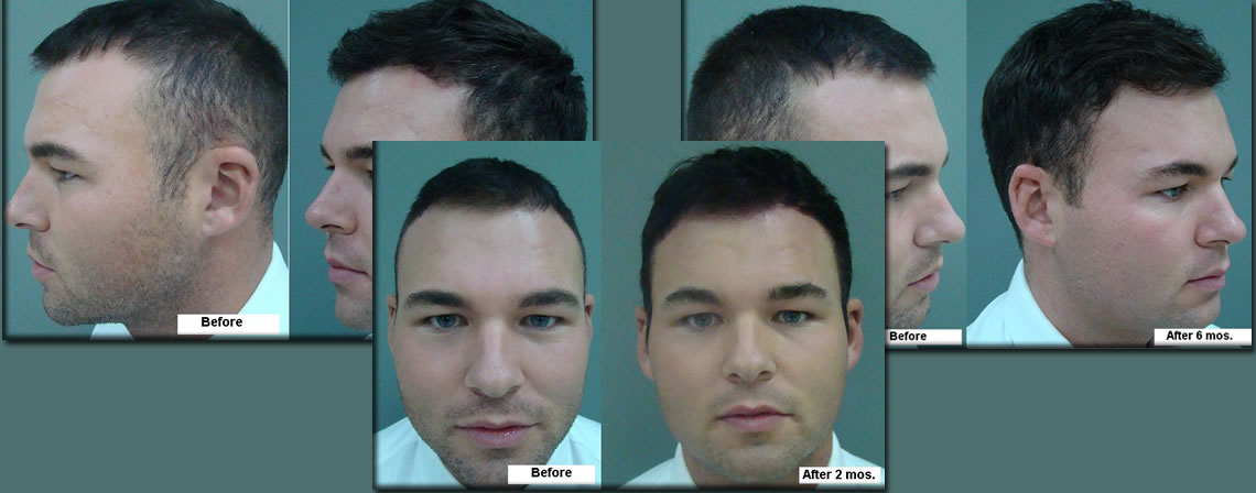 Craig Penketh Hair Transplant