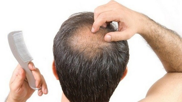 Important Steps When Dealing with Hair Loss in Dubai