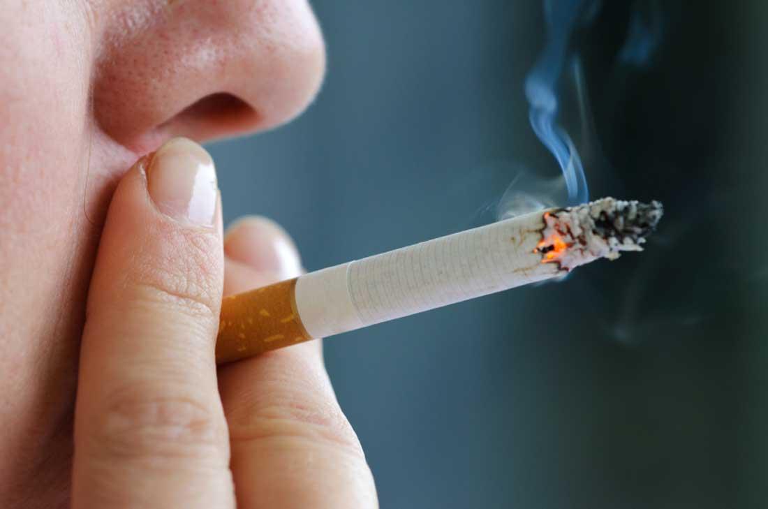 Can Smoking & Drinking Cause Hair Loss