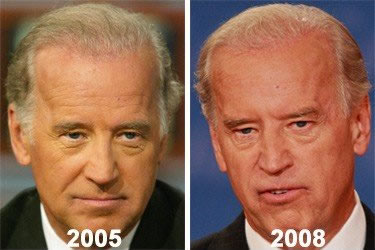Joe Biden's Hair Transplant