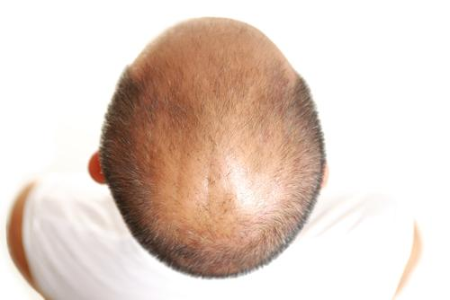 How to Slow Down the Balding Process