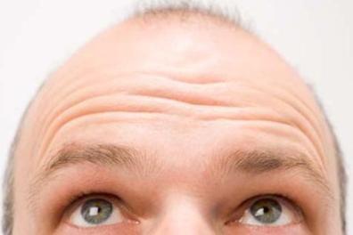Information about FUE Hair Restoration