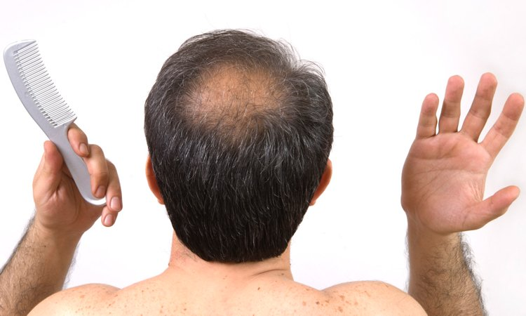 Cure and Treatment for Male Pattern Baldness