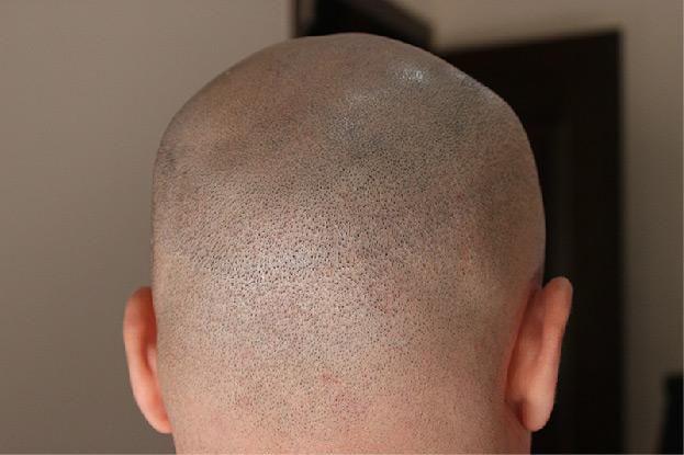 Scarless Hair Transplant Surgery