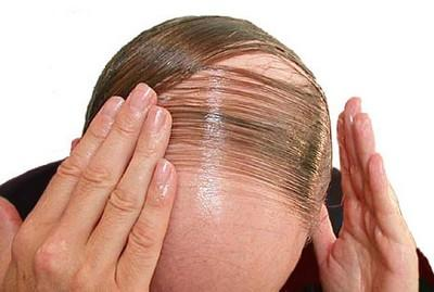 Androgenic Hair Loss