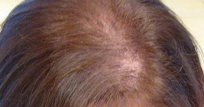 alopecia in women
