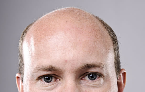 Most Suitable Option for Hair Transplant