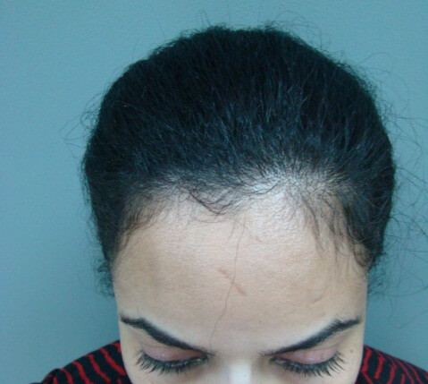 hair transplant in black women
