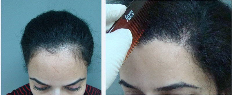 women Hair Transplant before after