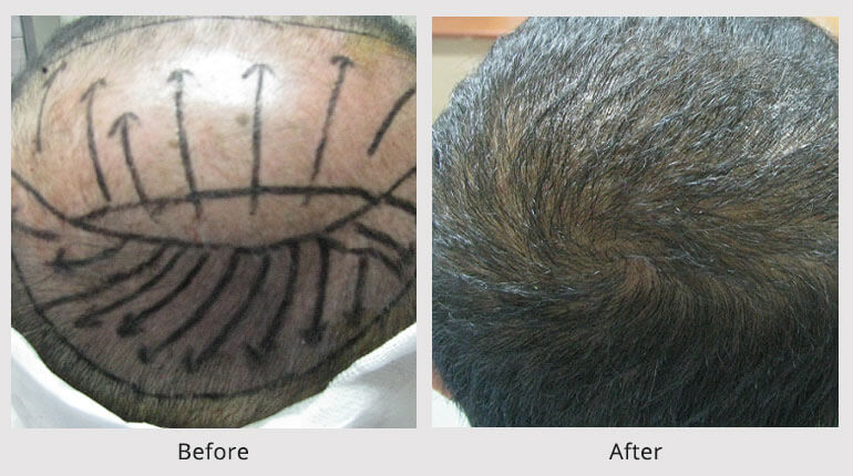 Artistic Vertex Design Hair Transplant