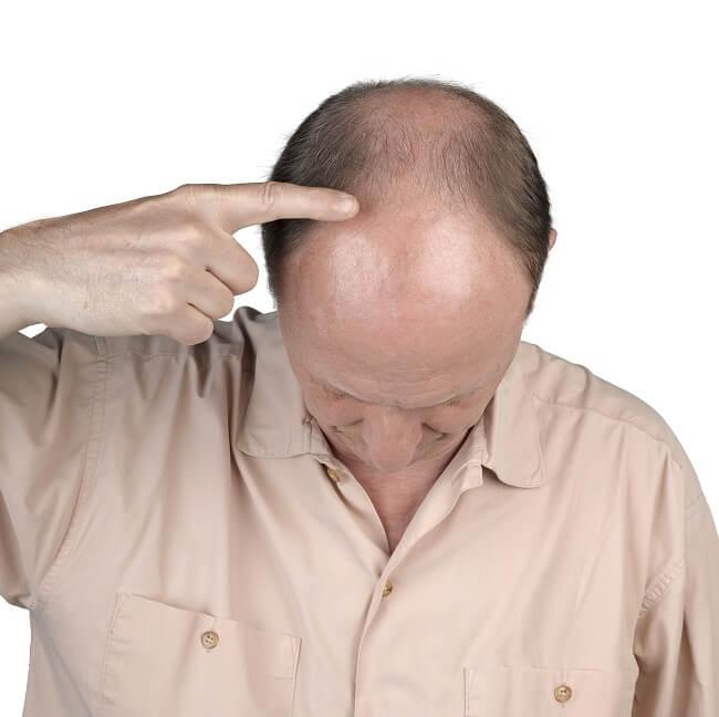 Diffuse Unpatterned Alopecia