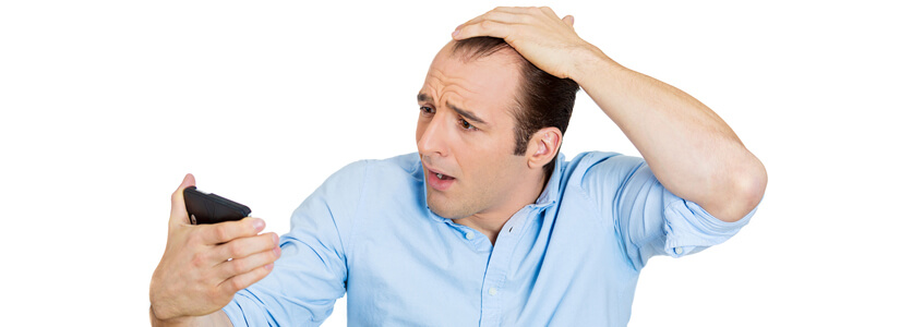 Extracellular Matrix-hair-loss
