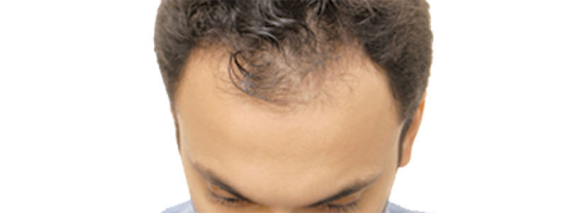 Consider-visiting-Dubai-for-a-hair-transplant-and-save