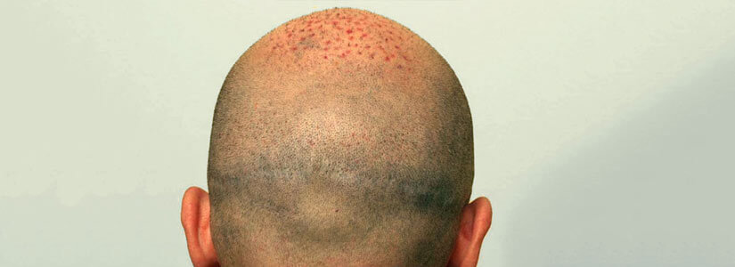 Scalp-micropigmentation-for-Post-hair-transplant-Scars