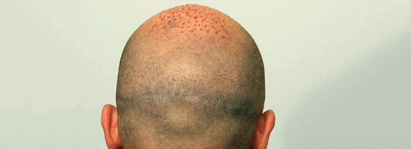 Scalp-micropigmentation-for-Post-hair-transplant-Scars