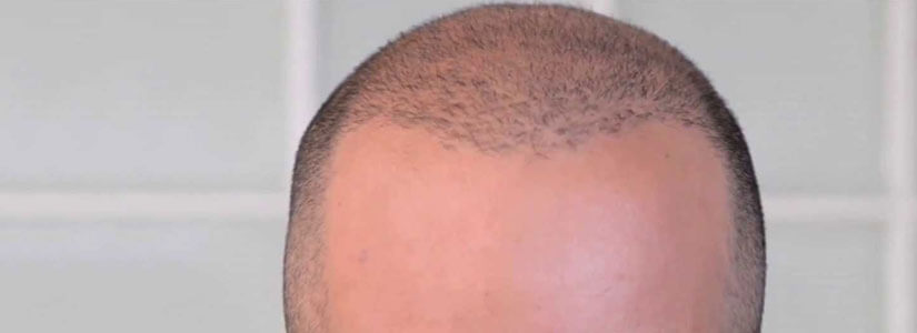 Scalp-micropigmentation-with-a-FUE-hair-transplant