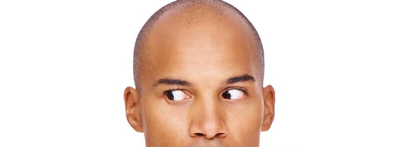 hair-loss-myths