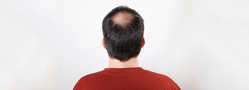 hair-loss-clinic