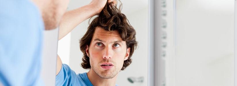 hair-loss