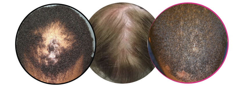 types-of-hair-loss
