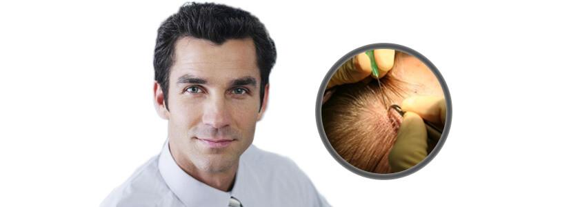 understanding-hair-transplant