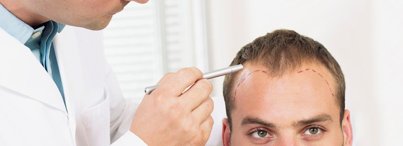 choosing-fue-technique-as-a-hair-transplant-procedure