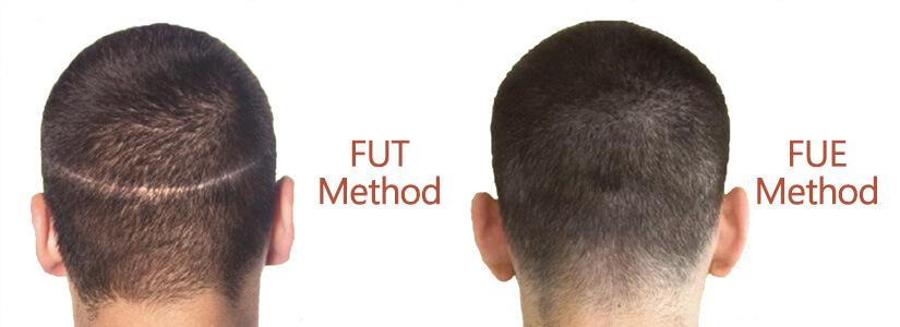 fue-vs-fut