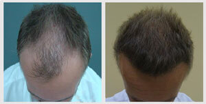 before-after-patient-five