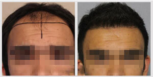 before-after-patient-three