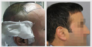 before-after-patient-two
