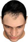 Horseshoe-Shaped Balding