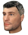 Beard hair transplantation