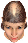 Pronounced thinning areas in the parting region