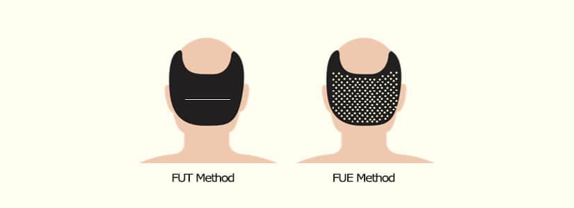 FUE-hair-transplant-FUT-hair-transplant