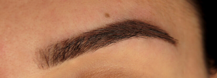 eyebrow-hair-transplantation