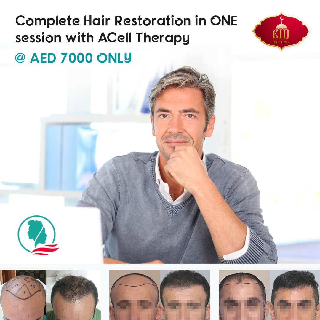 hair loss offer