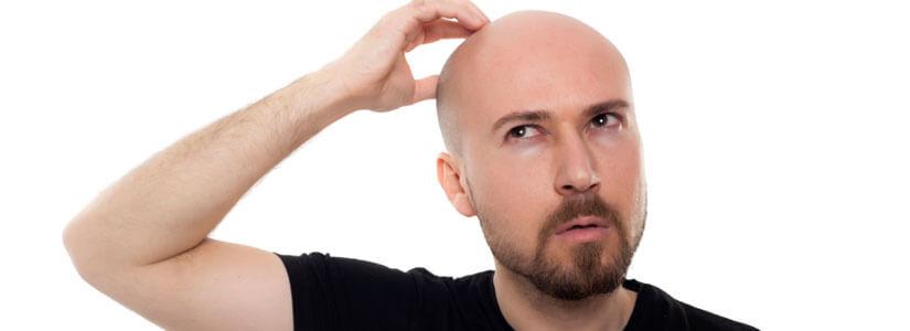 Faqs-hair-transplant