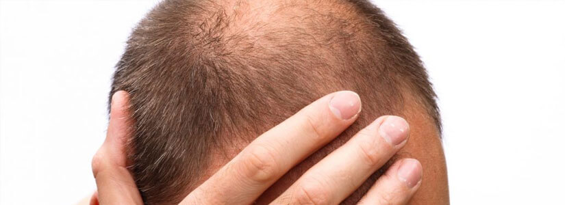 steps-to-take-when-you-notice-hair-loss
